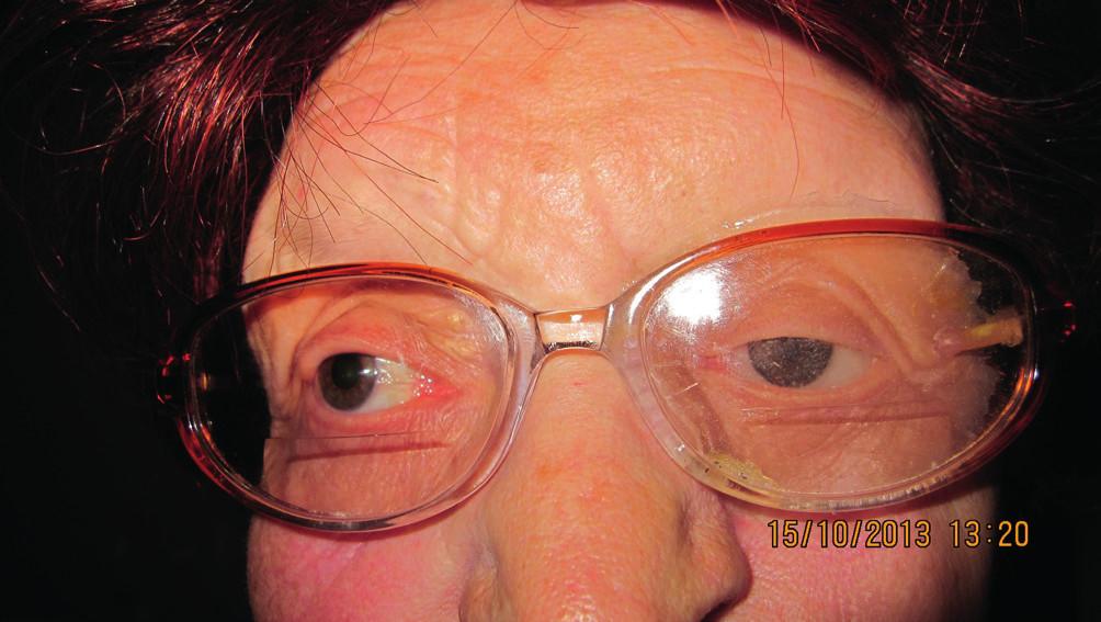 Pacientka s nasadenou epitézou v ráme okuliarov (10/2013)