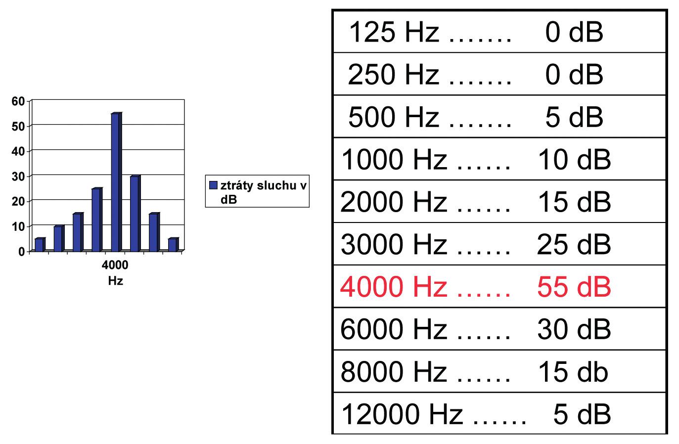 Sluchové ztráty zjištěné při prahové tónové audiometrii u osoby trpící poškozením sluchu způsobených hlukem (kostní vedení, levé ucho)