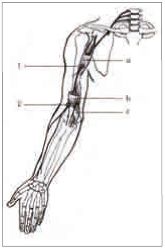 Schéma n. musculocutaneus. Úžiny: 1. průchod přes m. coracobrachialis; 2. průchod n. cutaneus antebrachii lateralis fascií. Svaly: a) m. coracobrachialis; b) m. biceps brachii; c) m. brachialis.