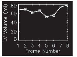Objemová křivka s dvěma vrcholy – synchronizace u této studie neproběhla správně.