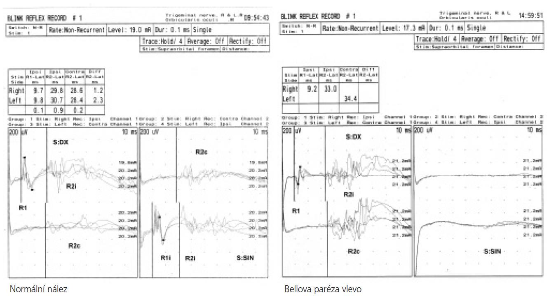 Porovnání normálního BR a abnormního BR u Bellovy parézy.
