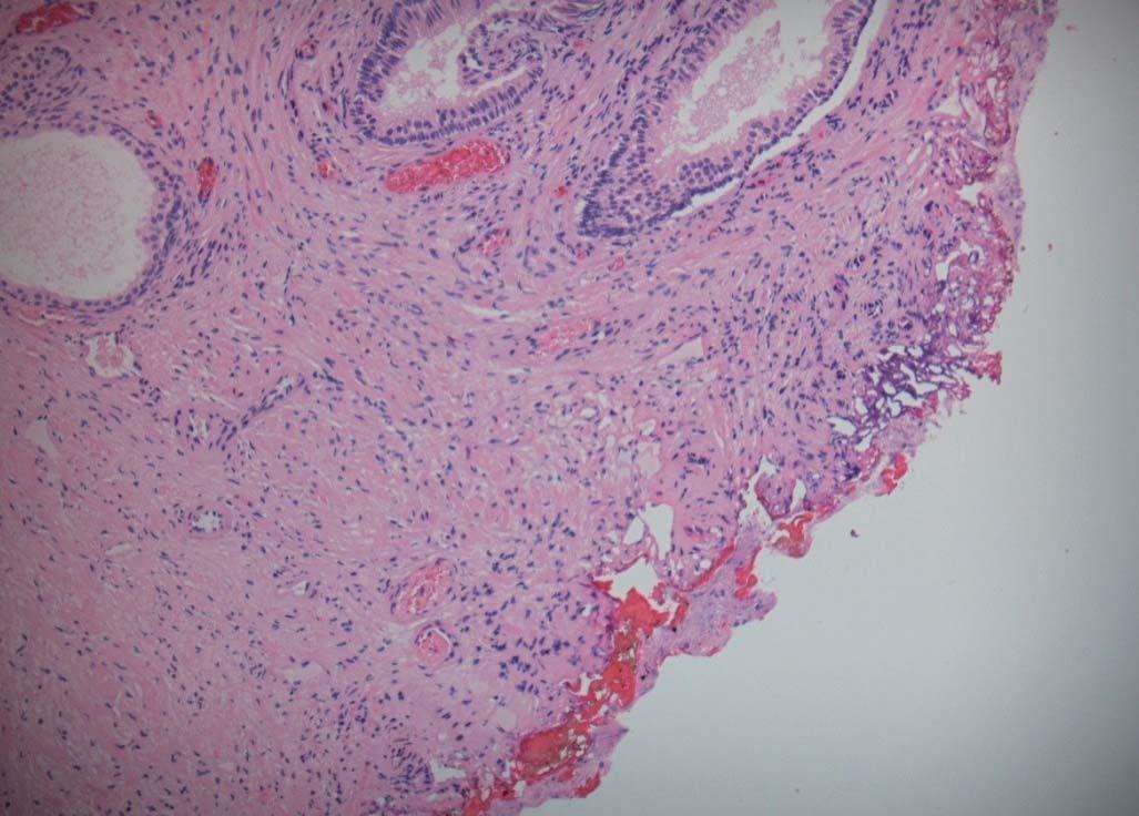 Schéma 4. Kontrolní tkáň HDZ (vytvořené pomocí TURis).