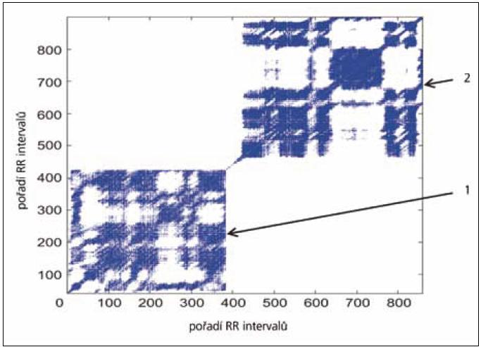 Rekurentní graf u diabetika, 54 let. Zvýšení hustoty rekurentních bodů vleže (1) i po postavení (2). V grafu jsou patrné větší shluky rekurentních bodů, které představují vyšší procento DET (procento bodů tvořících diagonální čáry).