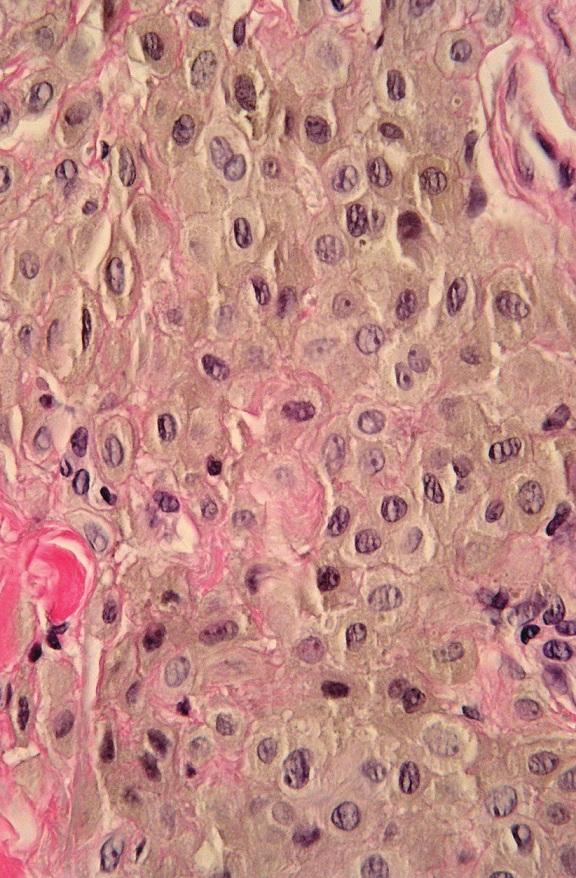 Hyperpigmentovaná léze. A. Asymetrická intradermální, hluboko sahající léze, B. detail – cytologické vlastnosti lze stěží posoudit pro překrytí jader melaninem, C. po vybělení melaninu jsou patrné epiteloidní melanocyty s hypochromními monomorfními jádry. Při absenci mitóz i zánětlivé reakce a pozitivitě buněk na S100 nález svědčí pro epiteloidní modrý névus (HE, A 40x, B 400x, C 400x).