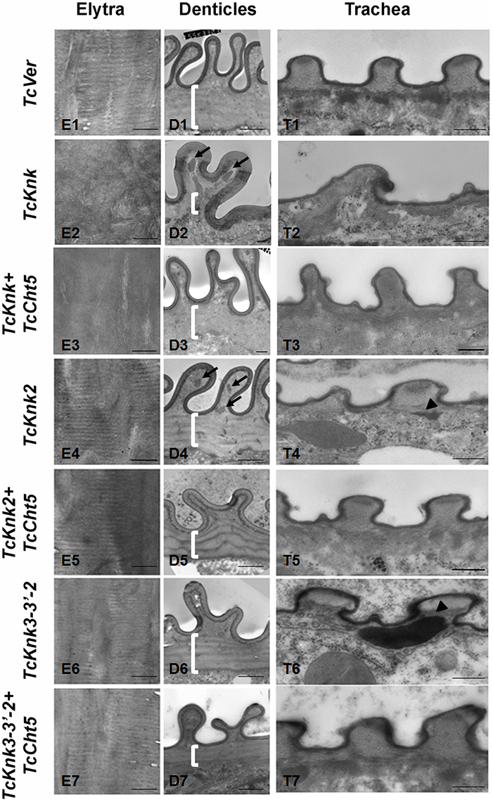 Transmission electron microscopic analysis of <i>TcKnk2</i> and <i>TcKnk3</i> (exon 9)-specific dsRNA-treated pharate adult elytra, lateral body wall denticles and tracheal taenidia.