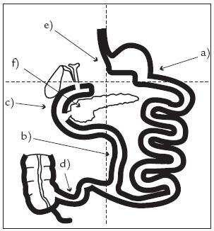 Metabolický účinek biliopankreatické diverze na různých úrovních zažívacího traktu (vysvětlení v textu).