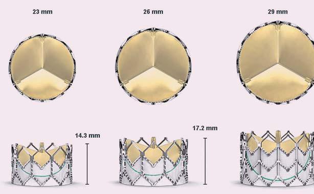 Protéza Edwards Sapien XT je výrazně kratší, rám chlopně nepřekrývá koronární tepny.