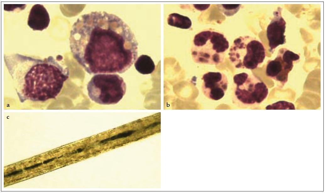 Chédiak- Higashiho syndrom. 3a: Monocyt s charakteristickými inkluzemi ve vakuolách, eozinofi l s atypickou granulací. 3b: Neutrofi lní segment s atypickou granulací (barvení dle Pappenheima, zvětšeno 1 000krát). 3c: Vlas s akumulací abnormálně velkých melanozomů.