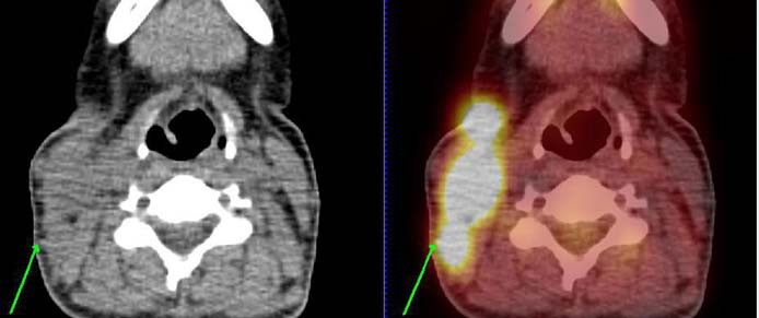 PET/CT nález leden roku 2011 v době stanovení diagnózy. Obrázek vztahující se ke kazuistice č. 2. U pacientky je patrná významná kumulace radioaktivní glukózy v tkáních na pravé straně krku svědčící pro vysokou metabolickou aktivitu tkáně.