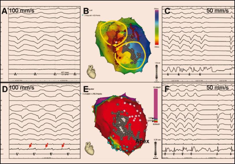 <b>Aktivační elektroanatomická mapa (B) při incesantně běžící poinfarktové KT (A).</b> Žluté šipky na obrázku B naznačují šíření elektrické aktivace dvěma aktivačními frontami (tzv. aktivace ve tvaru číslice 8), přičemž kritická oblast pomalého vedení je lokalizována v oblasti rozsáhlé anteroseptální poinfarktové jizvy, což je zjevné z voltážové mapy (E) (pohled na levou komoru je na obou obrázcích přibližně v levé šikmé projekci). V aktivační mapě (A) označuje červená barva aktivaci časnou a fialová barva aktivaci pozdní. Ve voltážové mapě kóduje červená barva oblast s nízkou voltáží < 0,5 mV reprezentující víceméně jizvu, fialová barva značí oblast s dobrou voltáží > 1,5 mV generovanou zdravým myokardem a zbytek barevného spektra kóduje okraje jizvy s defektním přežívajícím myokardem. V obou mapách je šedou barvou označen region zcela bez elektrických potenciálů, reprezentující kompaktní jizvu. Mapovaná KT (A) měla kritickou oblast pomalého vedení společnou pro oba reentry okruhy v místě, kde se setkává časná a pozdní aktivace. Při ablaci v tomto místě se tachykardie ukončila (C), protože však ablační katetr (ABL, ABL d) nesnímal prakticky žádný elektrický potenciál, je pravděpodobné, že arytmogenní substrát byl uložen spíše epikardiálně. Druhá indukovaná tachykardie (D) hůře hemodynamicky tolerovaná byla ukončena ablací (F) níže a blíže hrotu v místě, kde ablační katetr snímal middiastolické potenciály (červené šipky na obrázku D). Následně byla strategie přímého mapování doplněna o substrátovou ablaci zaměřenou na eliminaci pozdních potenciálů v nejbližším okolí (místa aplikace RF energie jsou označena hnědými body na obrázku B). Výsledkem výkonu byla nevyvolatelnost jakékoli komorové tachyarytmie.
