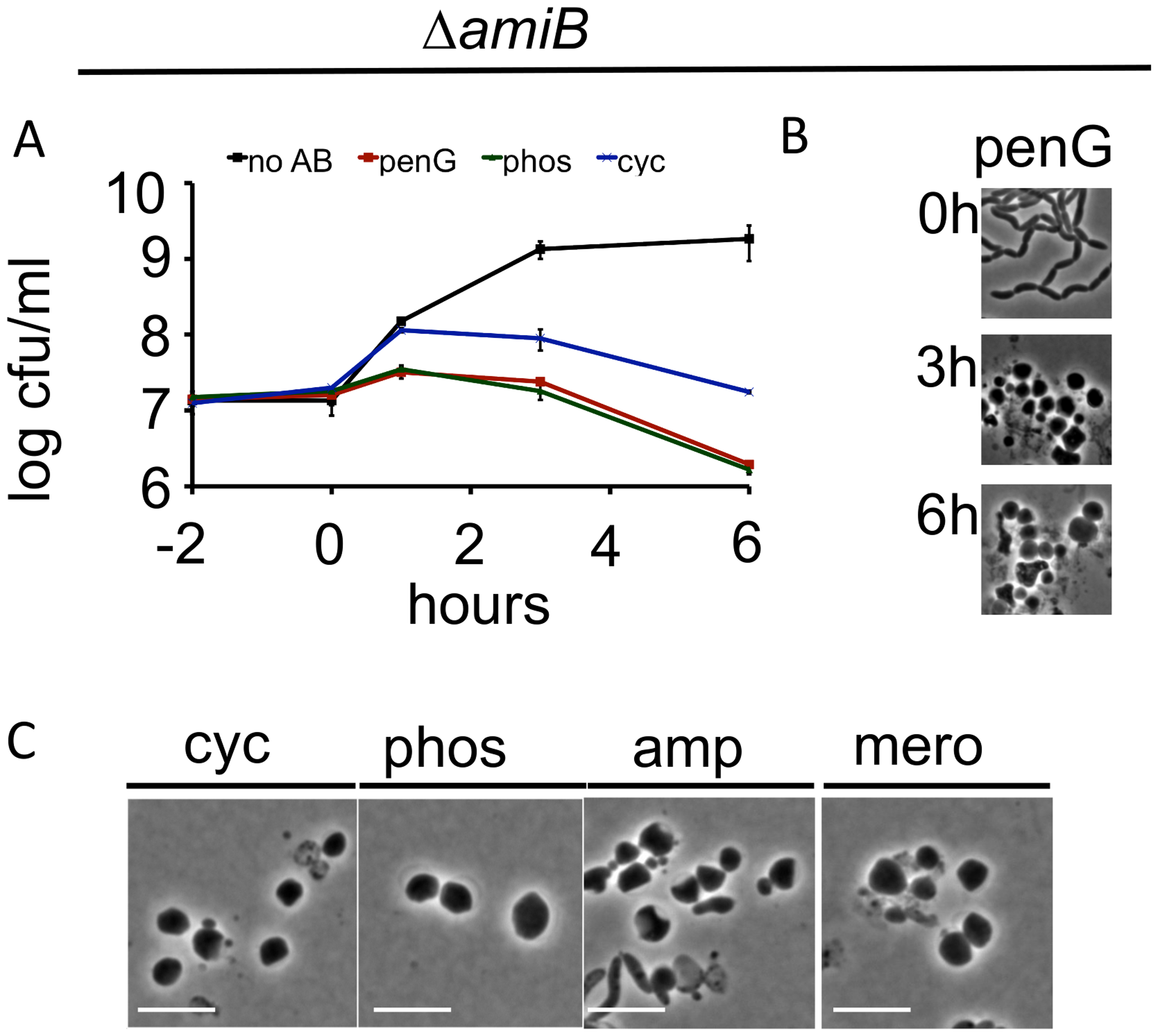 <i>V</i>. <i>cholerae amiB</i> is not required for sphere formation in response to inhibition of cell wall synthesis.