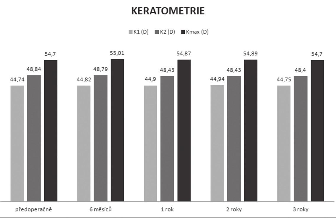 Průměrné hodnoty keratometrie v průběhu sledování vysvětlivky: K1 – průměrná keratometrie přední plochy rohovky v nejplošším meridiánu (sagitální zobrazení) K2 – průměrná keratometrie přední plochy rohovky v nejstrmějším meridiánu (sagitální zobrazení) Kmax – hodnota zakřivení přední plochy rohovky v apexu keratokonu (sagitální zobrazení)