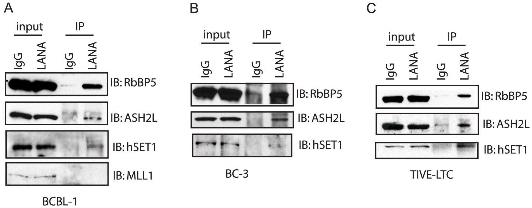 LANA forms complex with H3K4me3 methyltransferase hSET1 <i>in vivo</i>.