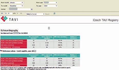 Výsledky echokardiografického vyšetření (ponecháno v původním jazyce)