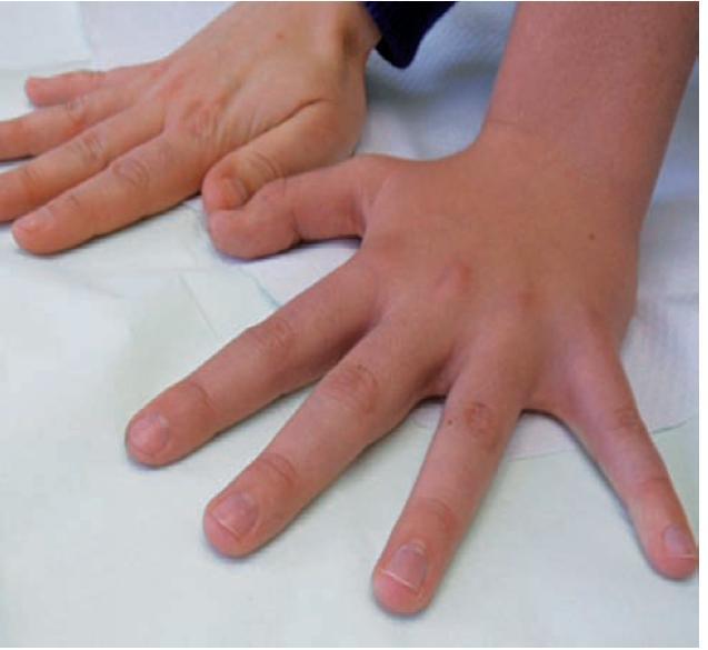 Obr. 2 a. Srovnání ruky nemocného a jeho matky
