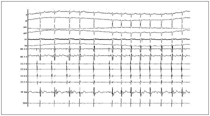 Přítomnost junkční ektopie v průběhu úspěšné katetrizační ablace (popis záznamu: II, III, aVL, aVF, V1, V6 = standardní povrchové svody EKG; HBE 2–3, 1–2 = potenciály z oblasti Hisova svazku; CS 1–2 až CS 7–8 = potenciály z dekapolárního elektrodového katétru zavedeného v koronárním sinu; RF bip = signál z ablačního katétru; RVA = potenciál z oblasti hrotu pravé srdeční komory).