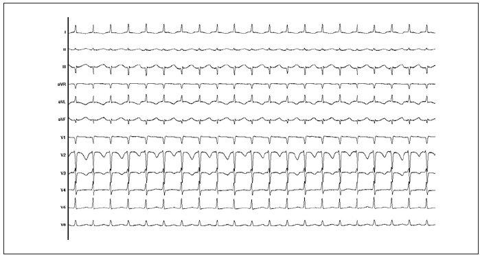 12svodový záznam EKG typické AVNRT. Vlna P se zapisuje v terminální části komplexu QRS, a vytváří tak obraz tzv. pseudo-r' ve svodu V1 (tj. nejde o skutečný kmit r', který by odpovídal poruše depolarizace komorové svaloviny).