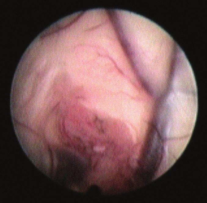 Endoskopický pohled na zakryté foramen Monroe.