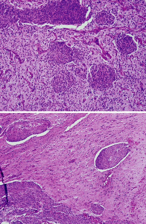 Difúzne rastúci meningeóm. Ložiskovo zachovaný rast v lalôčikoch s vírovitým usporiadaním (a). Invázia do parenchýmu mozgu (b). HE, zväčšenie 100 a 40-krát