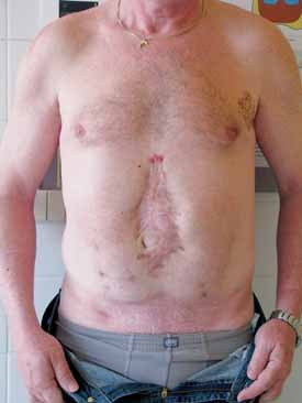 Pacient po břišní operaci pro akutní pankreatitidu Fig 3. Patient after abdominal surgery dute to acute pancreatitis