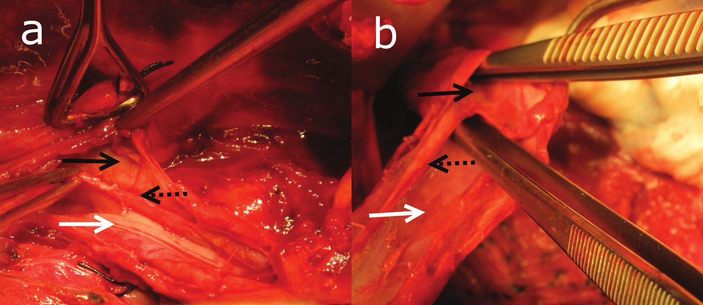 Peroperačný nález intramurálne disekcie Pravý lúmen (biela šípka), disekcia (čierna šípka)a septum z mukózy (čierna bodkovaná šípka). Fig. 1: The intramural esophageal dissection The true lumen (a white solid arrow), the dissection (a black solid arrow)and the mucosal septum (a black dotted arrow).