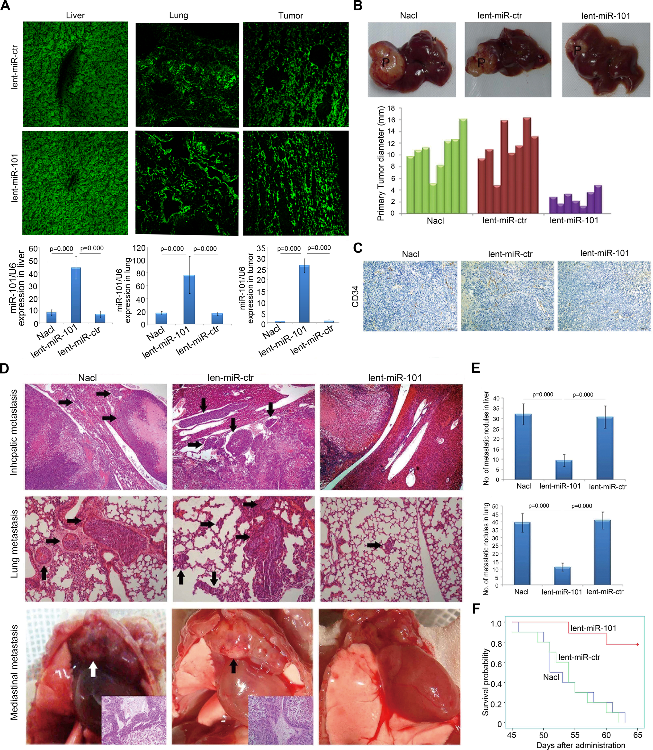 Systemic delivery of lent-miR-101 suppresses tumor growth, angiogenesis and metastasis in the orthotopic liver implanted HCC model of mouse.