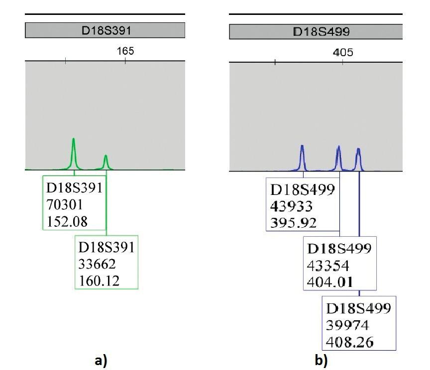 Výsledky QF-PCR plodovej vody u plodu postihnutého trizómiou 18 – Edwardsov syndróm; a) marker D18S39133662 dialelická trizomická vzorka 2:1; b) marker D18S49943354 trialelická trizomická vzorka 1:1:1