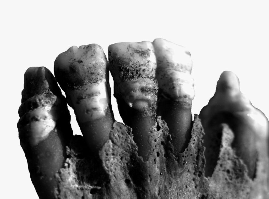 Fragmenty lebky gracilní 14–18leté dívky (hrob č. A 1843) s výraznou hypoplázií zubů.