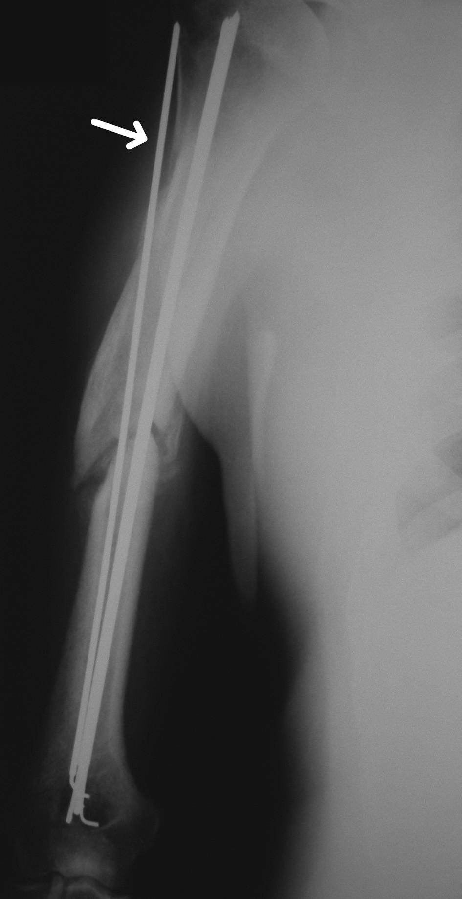 RTG snímek hypertrofického pakloubu diafýzy humeru při nitrodřeňové osteosyntéze podle Hackethala. Kirschnerův drát zavedený mimo dřeňovou dutinu označen šipkou Fig. 1. X-ray picture of hypertrophic nonunion of the humeral shaft with intramedullar osteosynthesis sec Hackethal. K-wire positioned extramedullary is marked with arrow