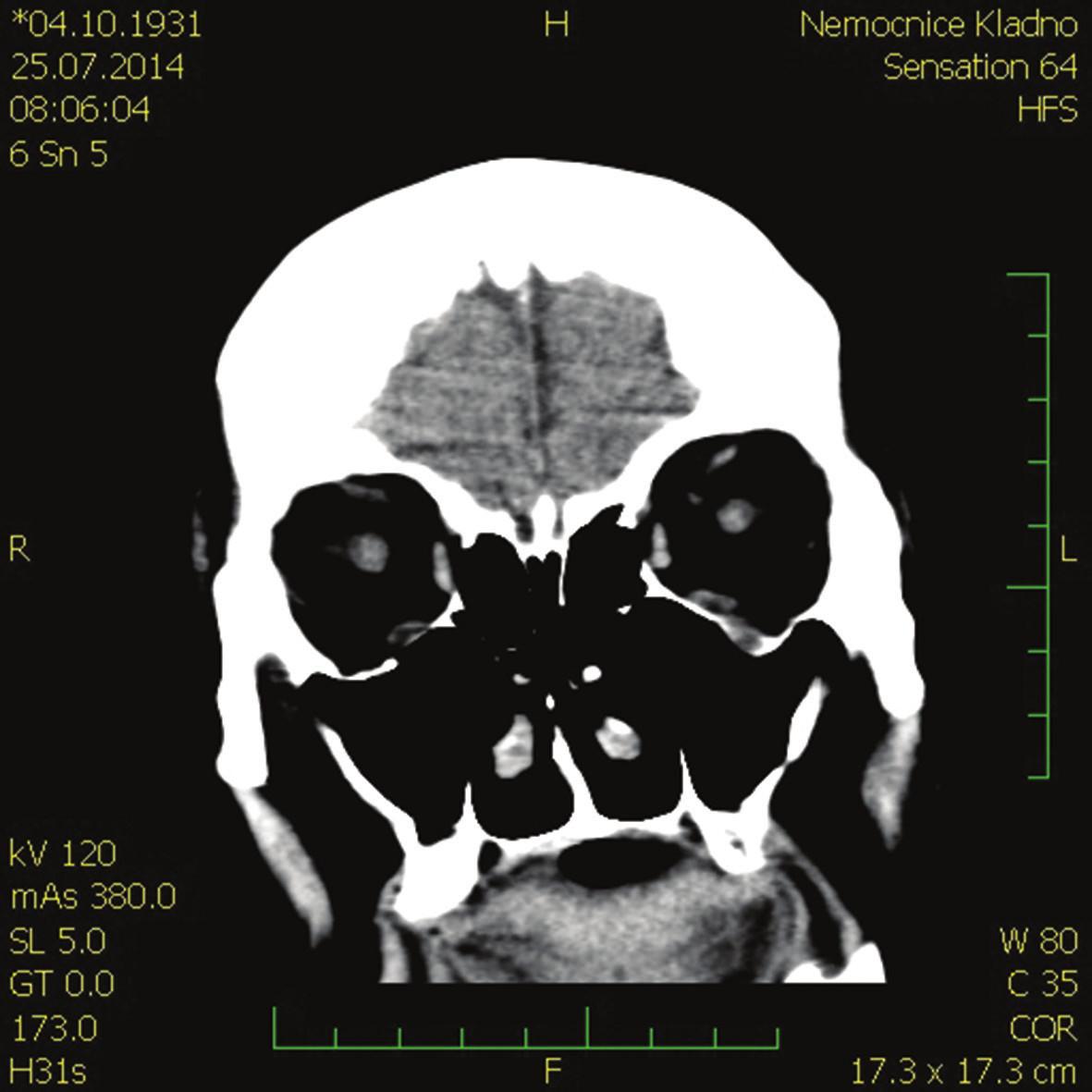 CT hlavy – koronární řez