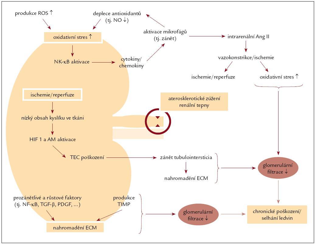 Patobiochemie poškození ledvin při aterosklerotickém postižení renálních tepen s hypoperfuzí.