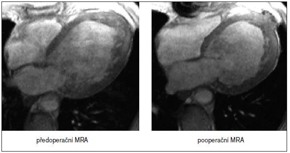 Obr. 3. Snímky z MR angiografie levé komory, které ukazují stav před ventrikuloplastikou (vlevo) a po operaci (vpravo). Na pooperačním snímku je patrno zmenšení objemu levé komory a změna jejího tvaru.