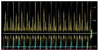 Respirační variabilita u transmitrálního průtoku u konstriktivní perikarditidy komora).