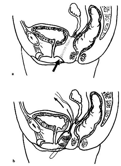 Schéma zavádění vláken a fantomu při laparoskopické neoplastice pochvy