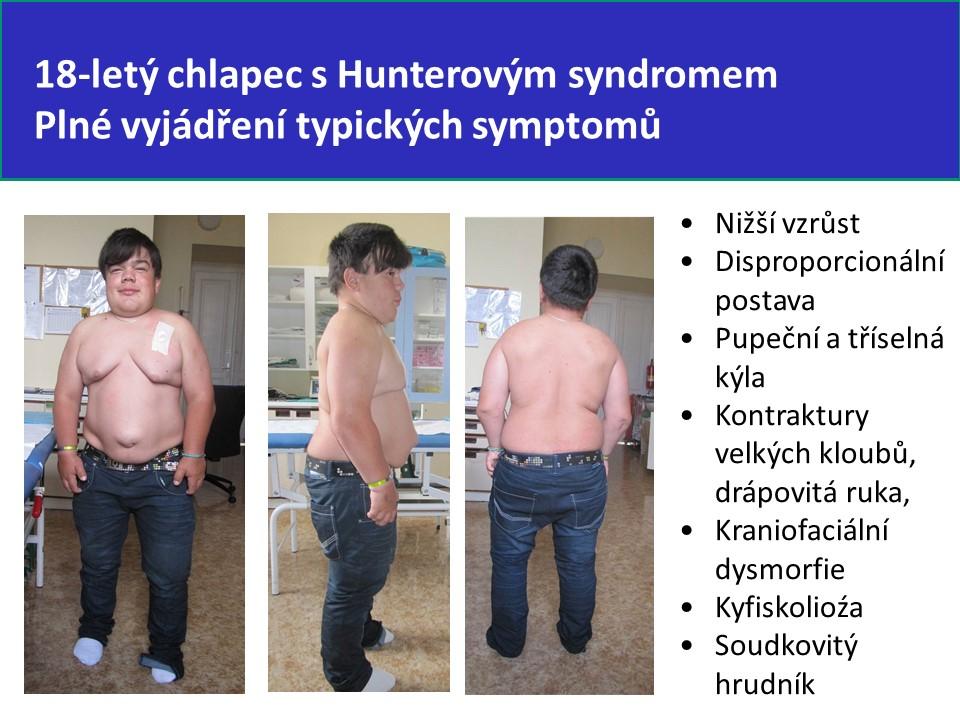 Mukopolysacharidóza typ II – Hunterův syndrom - 13
