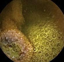 Polyp jejuna, kapslová enteroskopie. Fig. 2. Polyp in jejunum, capsulle enteroscopy.