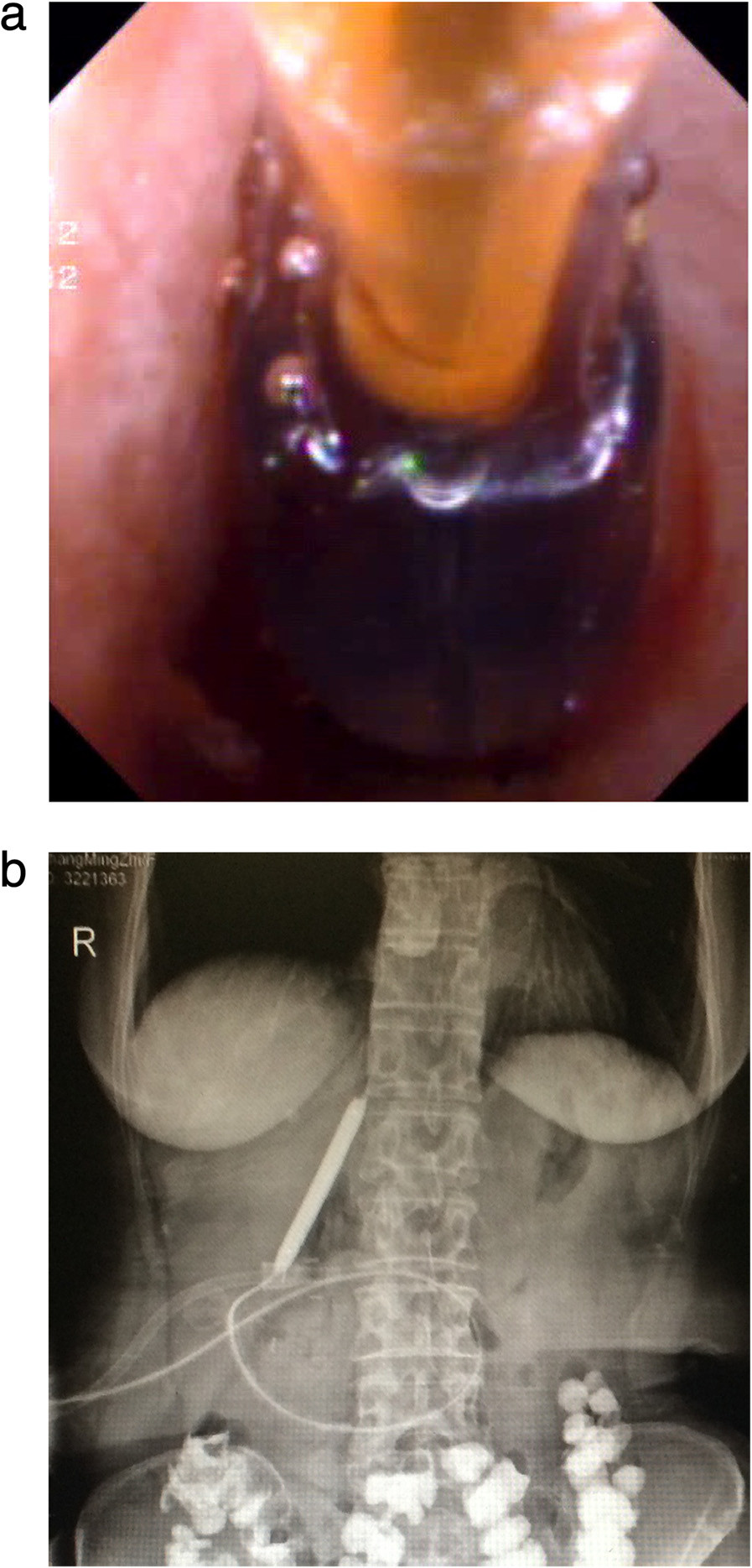 Balloon dilation of anastomotic strictures: a) Choledochoscopic balloon dilatation of the anastomotic stricture under the guidance of the yellow zebra guide wire. b) Balloon dilation under X-ray