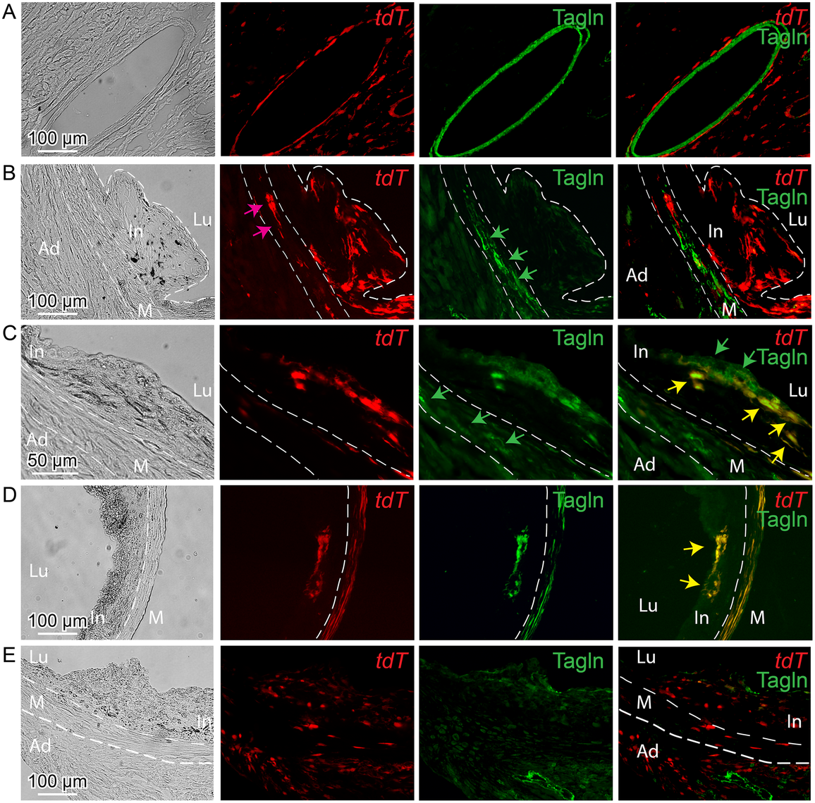 <i>Tcf21</i> expressing cells in <i>ApoE</i><sup><i>-/-</i></sup> lesions give rise to smooth muscle cells in the fibrous cap.