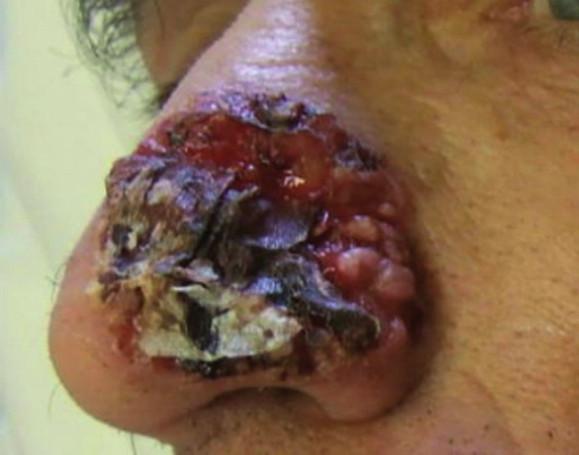 Rozsiahly agresívne rastúci bazocelulárny karcinóm nosa s výraznou ulceráciou a deštrukciou okolitého tkaniva (fotografia poskytnutá láskavosťou MUDr. Milady Kullovej, primárky Oddelenia dermatovenerológie FNsP v Žiline).