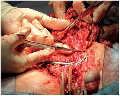 Peroperační snímek, excise ingvinoskrotální oblasti vpravo a penektomie Fig. 6. Peroperative foto, excision of inguinoscrotal region with penectomy