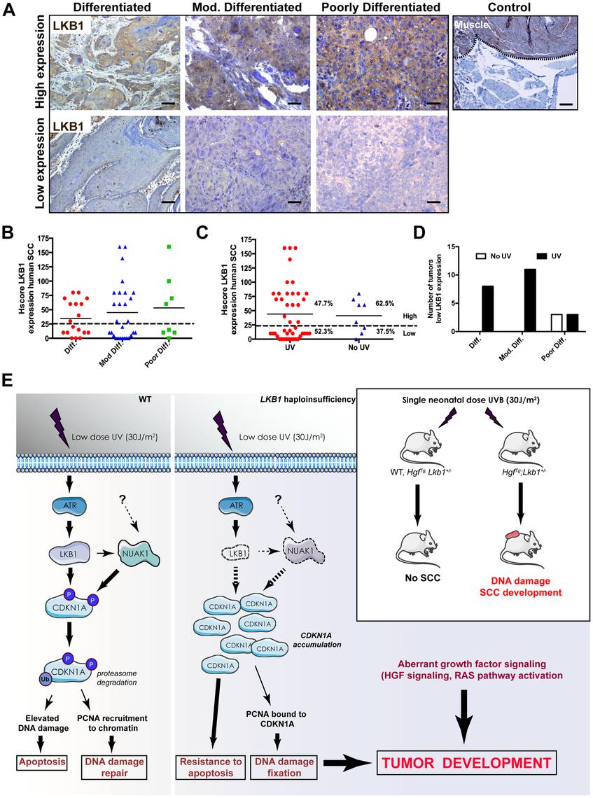 LKB1 expression in human skin-SCC.
