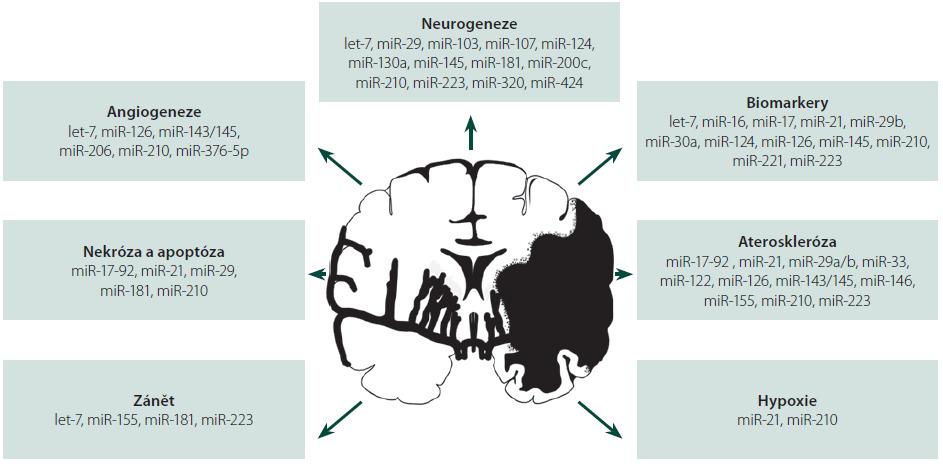Schéma 1. MiRNA u akutního mozkového infarktu. Schéma znázorňuje zapojení specifických molekul miRNA do procesů: hypoxie, zánětu, nekrózy a apoptózy, angiogeneze a neurogeneze a aterosklerózy. Shrnuje též využití miRNA jako potenciálních biomarkerů.