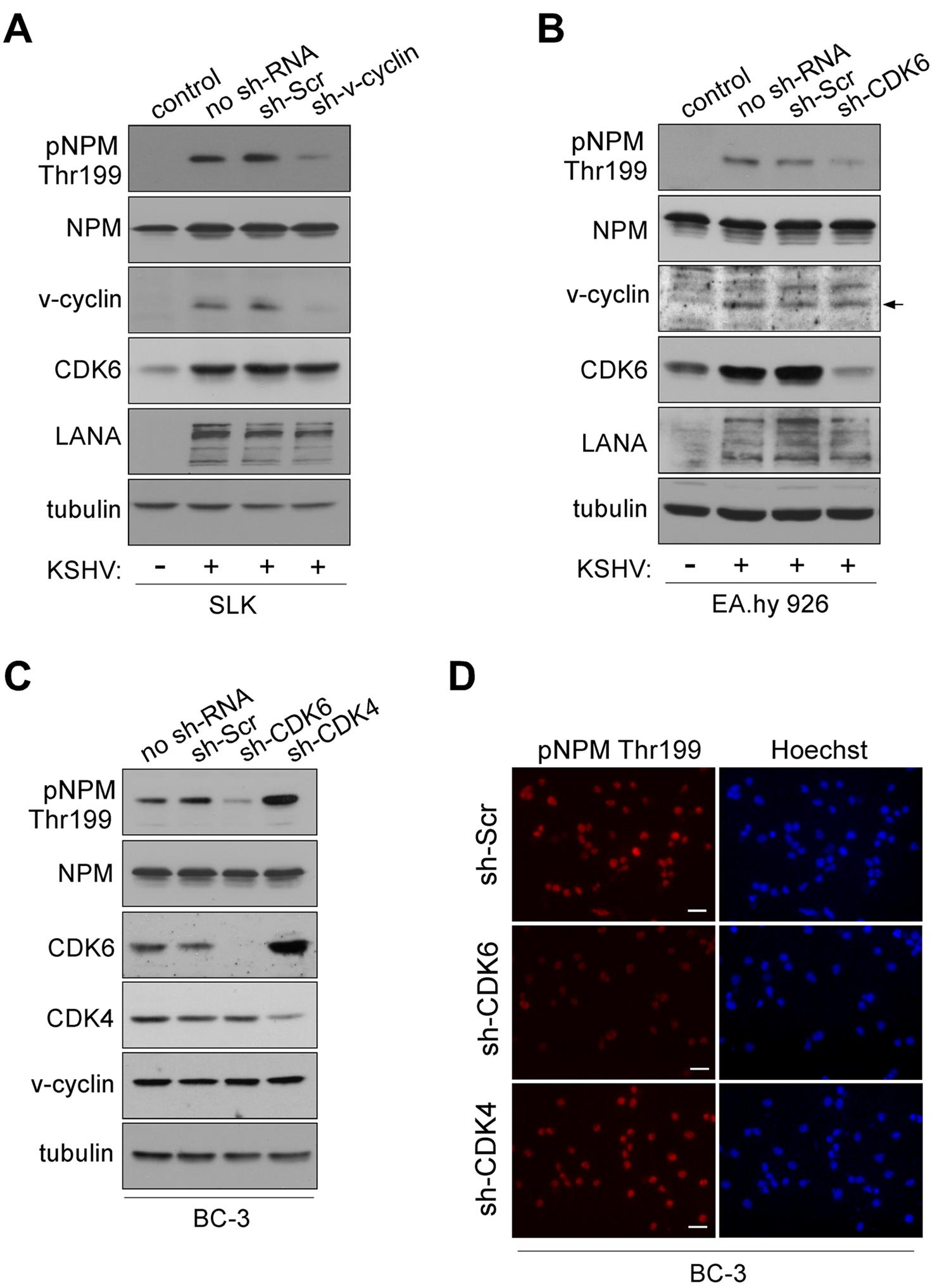 NPM phosphorylation is dependent on v-cyclin-CDK6 activity.