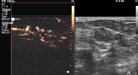 V šesté sekundě již dobře patrné penetrující cévy v karcinomu. Dobře patrný nepoměr velikosti karcinomu nativně (pravý obrázek) a po aplikaci kontrastu.