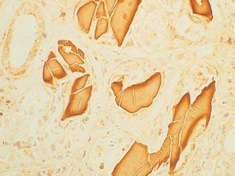 Průkaz pomocí biopsie ledviny s imunofluorescenčním nebo imunoperoxidázovým průkazem lehkých řetězců, které myelom produkuje.