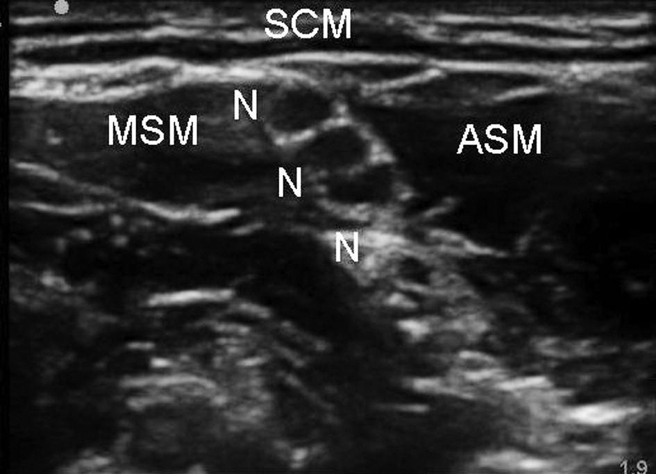 Interskalenická blokáda brachiálního plexu  Legenda: N – nervové kořeny, ASM – musculus scalenus anterior, MSM – musculus scalenus medius, SCM – musculus sterno - cleidomastoideus