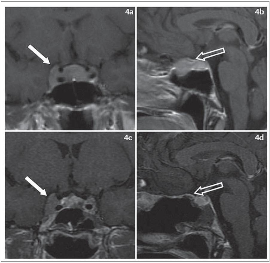 Meningeom v oblasti planum sphenoidale a pravého kavernózního splavu, T1 vážené řezy s kontrastní látkou. Obr. 4a) Předoperační MR, koronární řez, obr. 4b) předoperační MR, sagitální řez, obr. 4c) kontrolní MR po parciální resekci meningeomu, koronární řez, obr. 4d) kontrolní MR, sagitální řez.  Šipka na obr. 4a a obr. 4c ukazuje na část meningeomu v kavernózním splavu, který nebyl atakován. Šipka na obr. 4b ukazuje na meningeom v oblasti planum sphenoidale, na obr. 4d ukazuje planum sphenoidale, kde byl meningeom kompletně odstraněn.