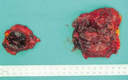 Preparát – tumorózně postižené nadledviny. Fig. 4. Specimen – tumour affected adrenals.