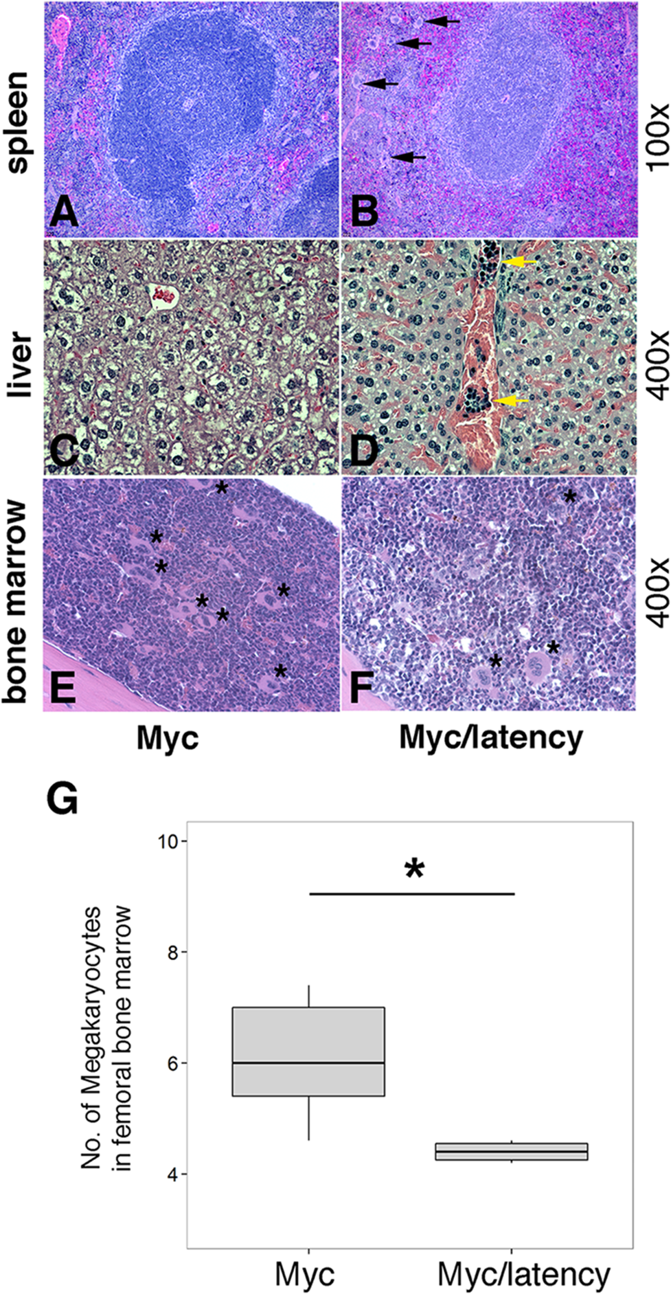 Severe EMH in the Myc/latency mice.