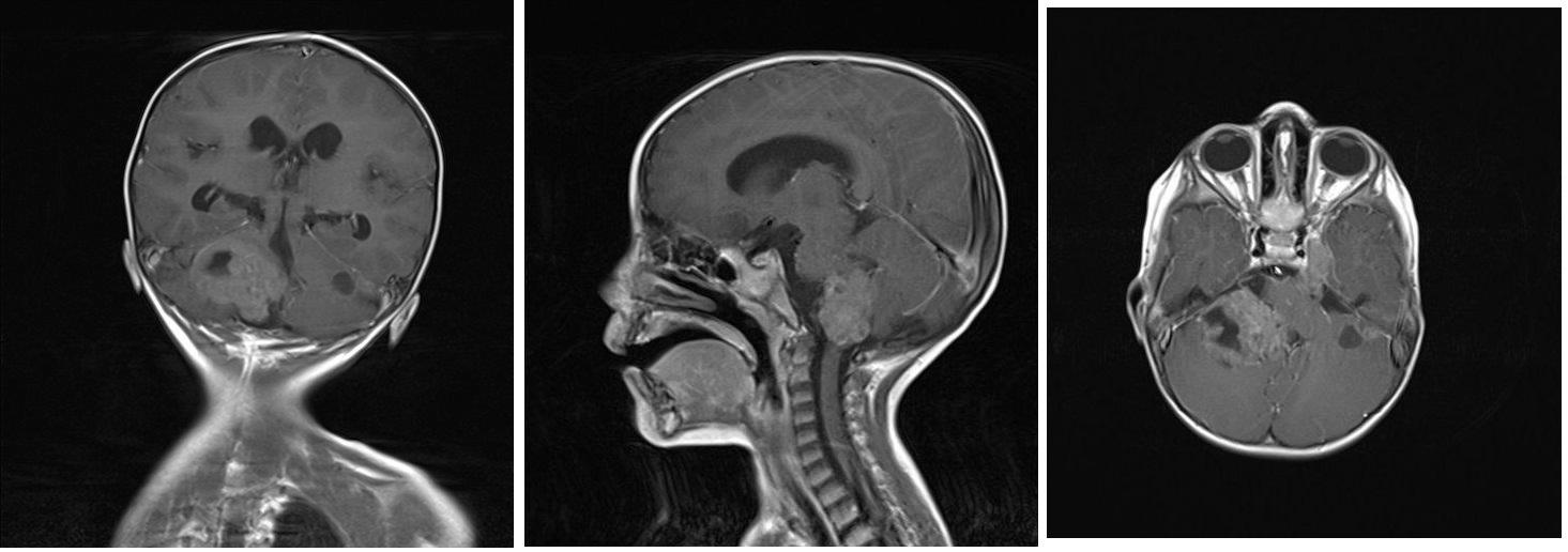 A, B, C Magnetická rezonance - koronární, sagitální a axiální T1 vážené postkontrastní obrazy ukazující  nehomogenně sytící se ložisko v zadní jámě lební vpravo, které zasahuje do foramen magnum, infiltruje pravou cerebelární hemisféru a mozkový kmen. Dále jsou na axiálním zobrazení patrné menší útvary - metastázy podobného vzhledu v zadní jámě lební vlevo, v oblasti Gasserského ganglia vlevo a v pravém hippokampu. Image 3 A, B, C: Magnetic resonance – coronary, sagittal and axial T1-weighted images showing heterogenously enhancing tumor of posterior skull fossa reaching foramen magnum and infiltrating right cerebellar hemisphere and brain stem. Furthermore, other foci of metastasis in left posterior skull fossa, in ganglion Gasseri region and in right hippocampus are visible.